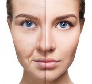 Laser Face and Eye Lift
