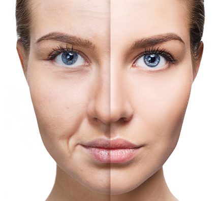 Laser Face & Eye Lift