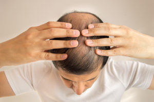 hair loss specialist in charlotte nc