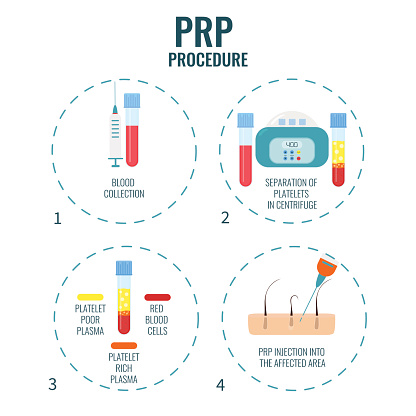 prp therapy and prp treatment