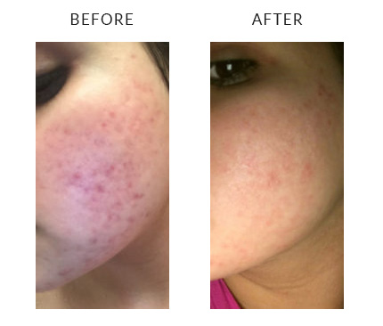 vivace™ before and after photos