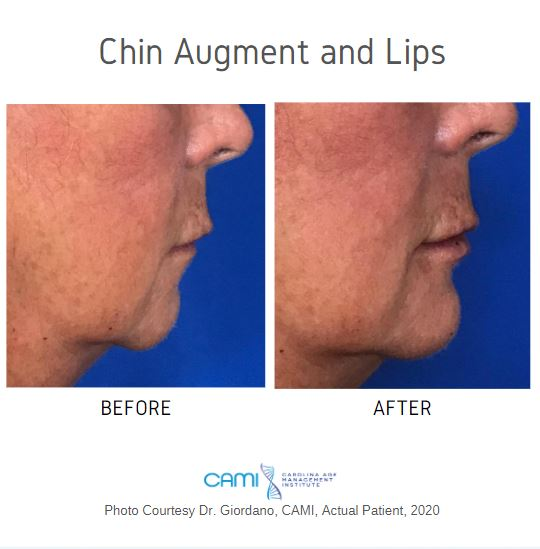 dermal filler chin augmentation before and after