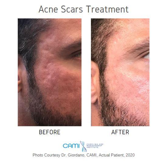 acne scar treatment in Charlotte NC