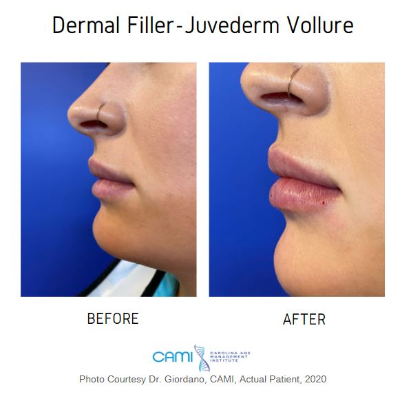 dermal fillers juvederm before and after pictures