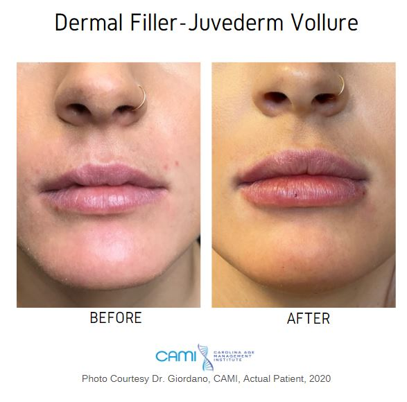 juvederm lip filler before and after pictures