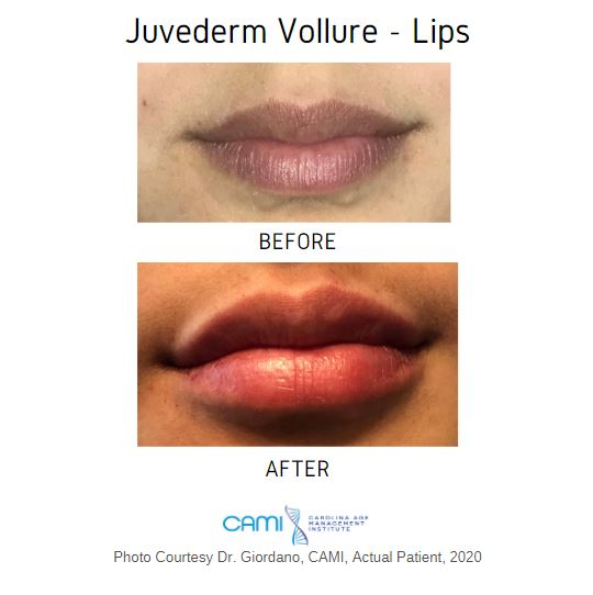 dermal fillers lip injections charlotte nc