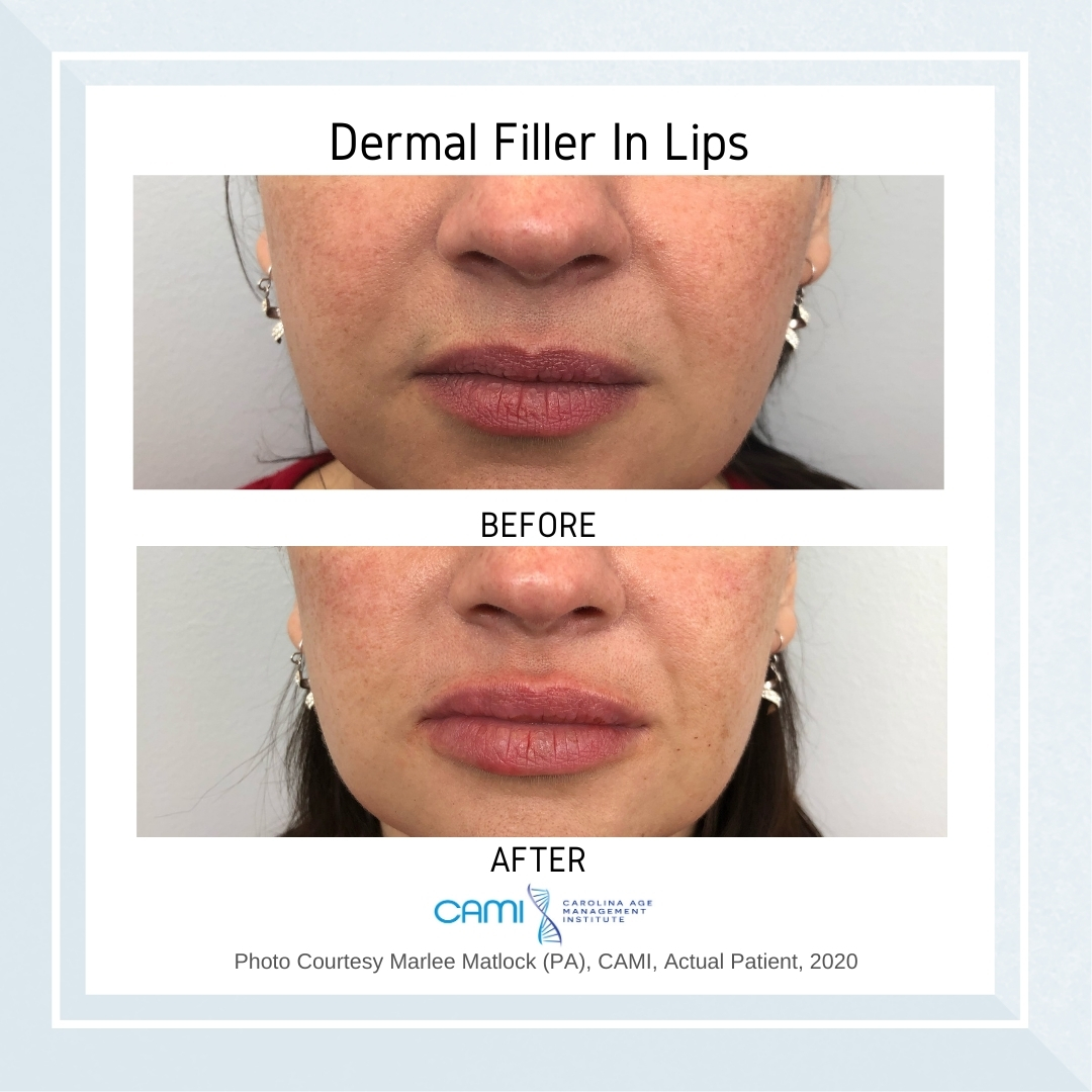dermal fillers before and after pictures