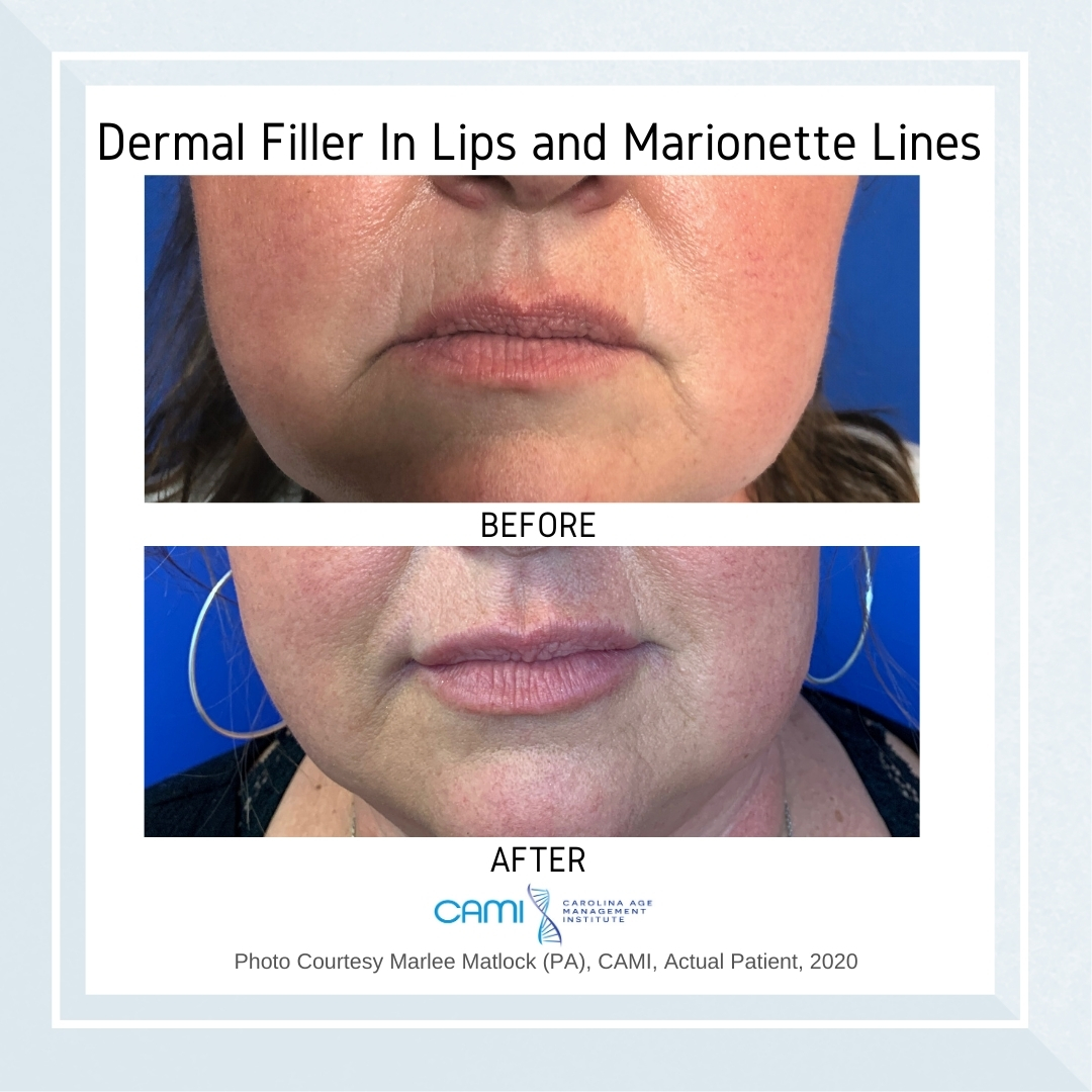 face fillers before and after pictures