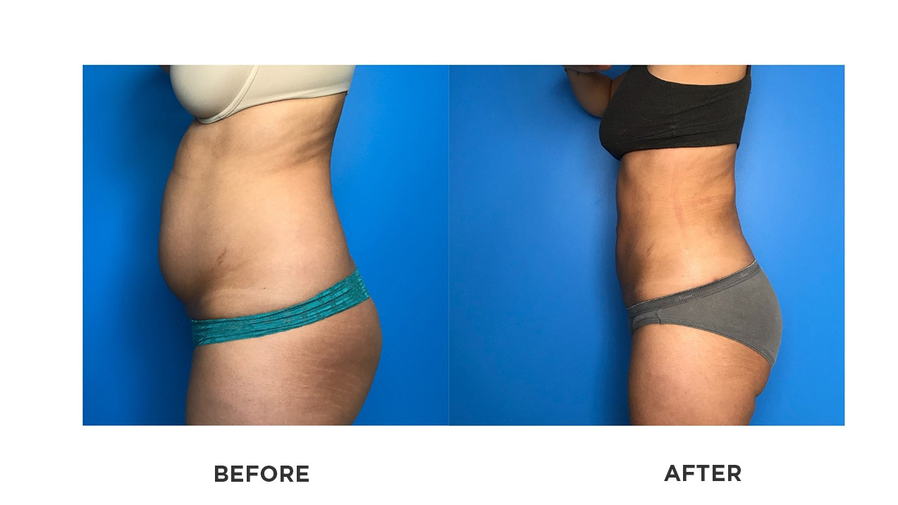 smartlipo before and after photos