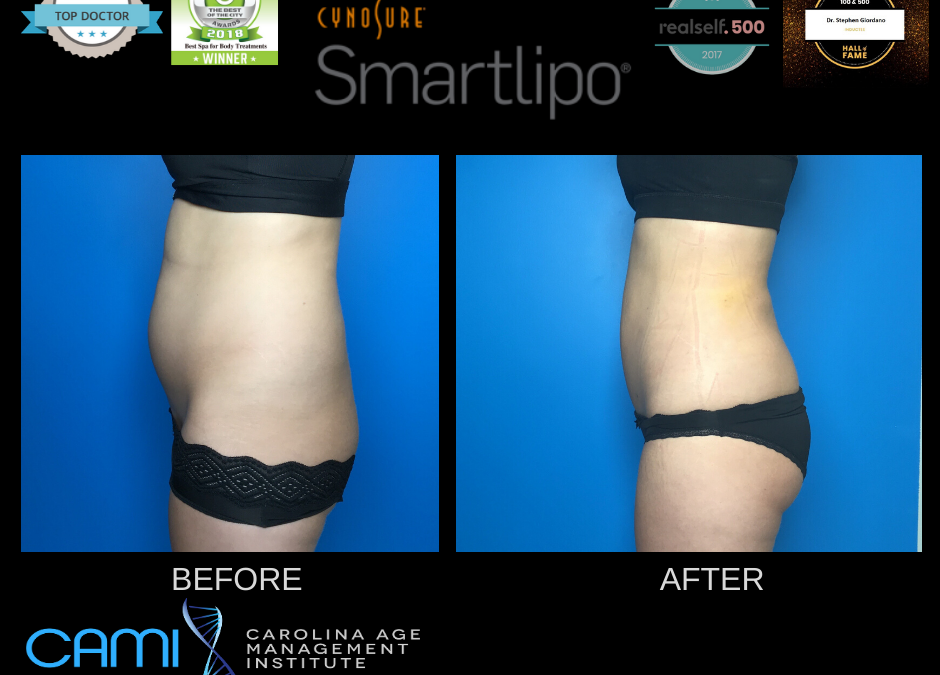 What is SmartLipo in Huntersville and North Charlotte, NC?