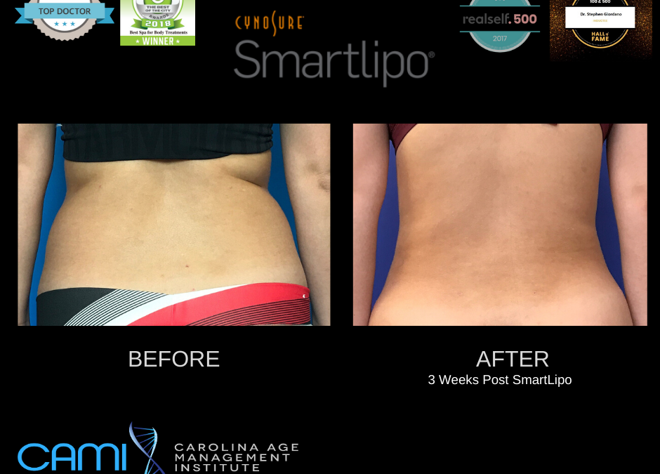 SmartLipo in Huntersville NC: benefits and effects
