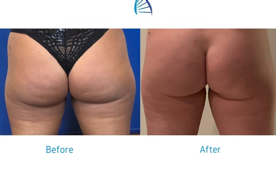 How To Get Rid of Cellulite on Butt for Good: QWO®
