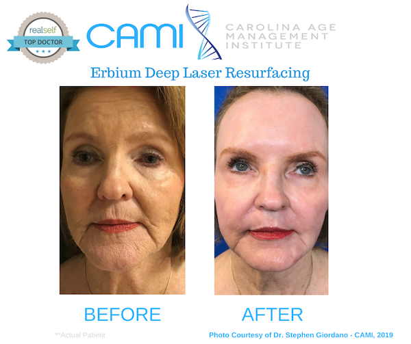 Best Laser Treatments for Wrinkles, Hyperpigmentation, Skin Tightening, and More