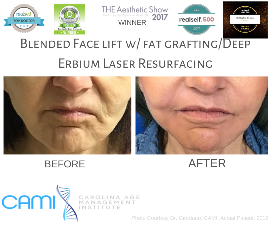 laser skin before and after